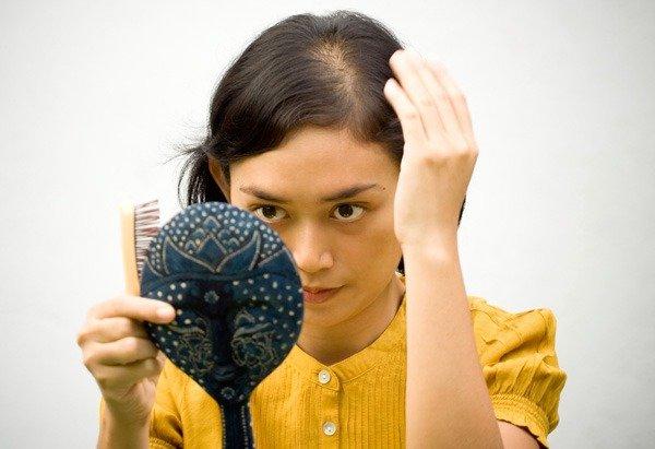Saçlarınız Niçin Dökülür ?
