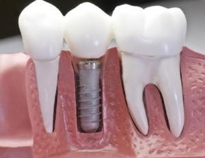 Diş İmplantı